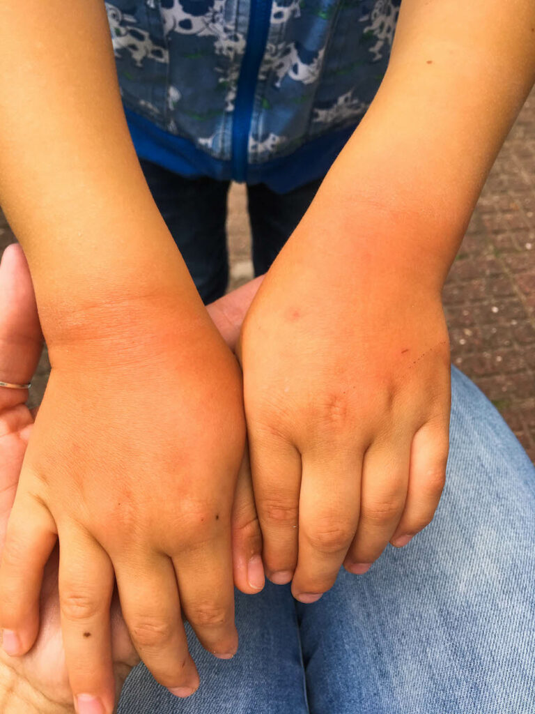 pijnlijke handen door het wassen